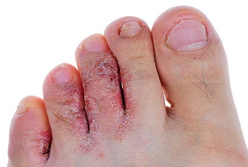 Дегтярное мыло от грибка между пальцами ног
